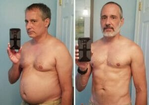 before-after-weight-loss-success-stories-271-59d766ae24489__700